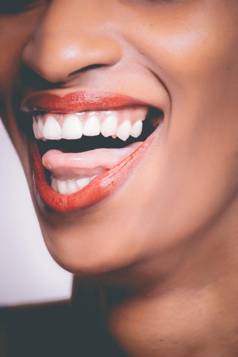 Przebarwienia na zębach — co zrobić?