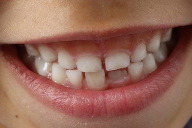 Ząbkowanie a brak apetytu — o tym i innych problemach z zębami malucha